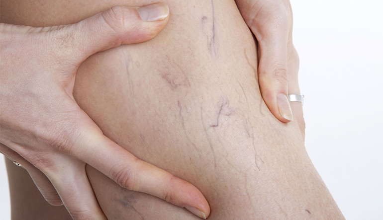 What Is the Best Varicose Vein Treatment?