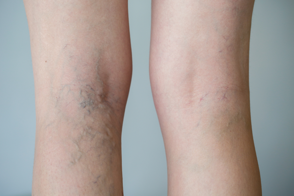 What Is a Vein Ablation?